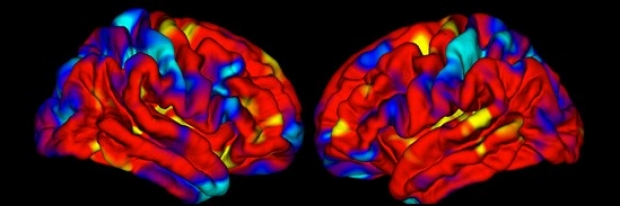 Brain image analysis